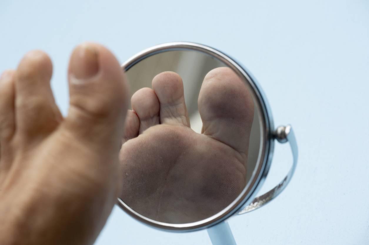 hallux valgus chaussures orthopédiques